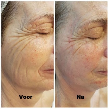 natural facelifting